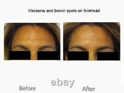 Cyspera (Cysteamine) Intensive Skin Pigmentation Cream Pigment Corrector